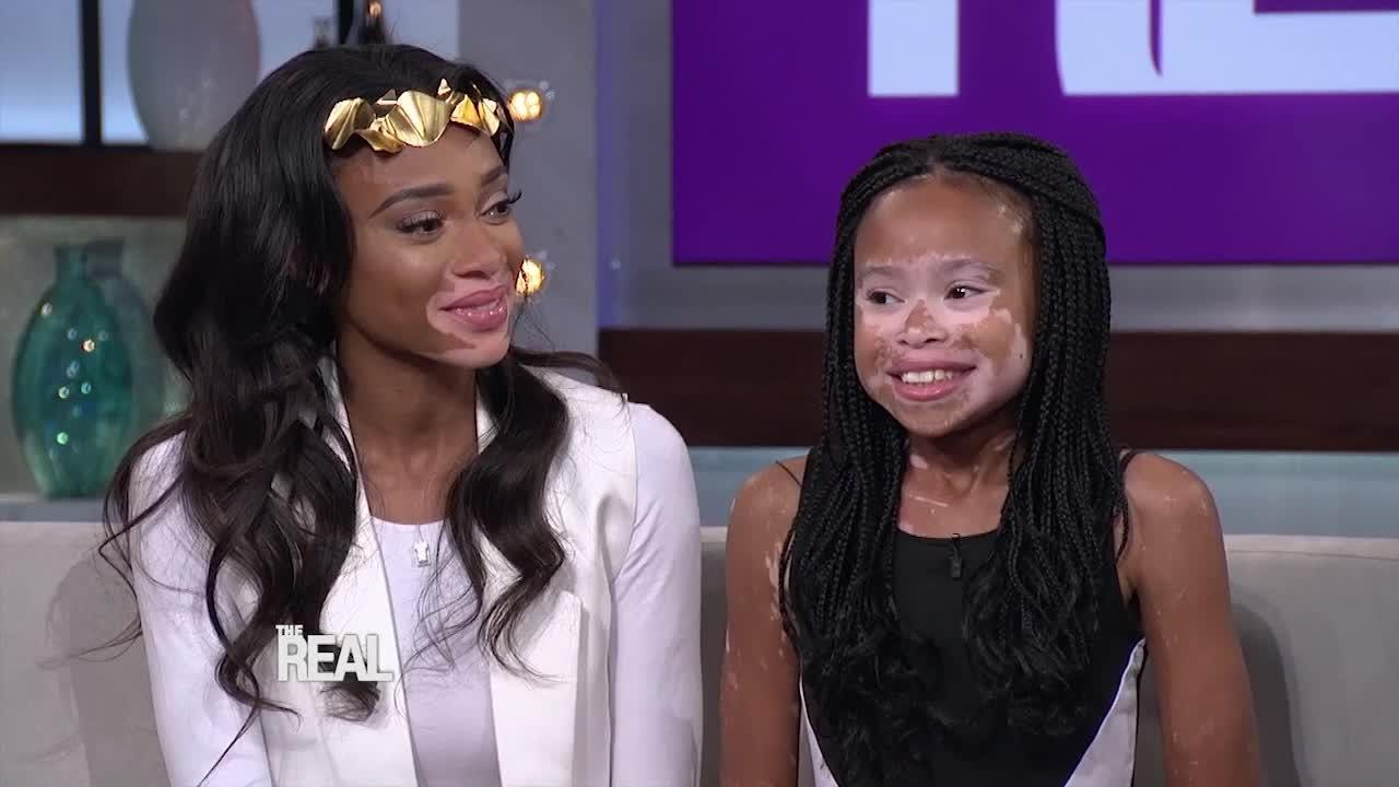 Winnie Harlow Gives a Fan Advice on Growing Up With Vitiligo