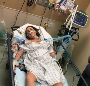 Reno, Nevada -- July 26, 2015: A photo from the emergency room an hour after I arrived at Renown hospital. At this point I was not responding to verbal or painful stimuli and the ventilator was breathing for me. I was completely unresponsive.
